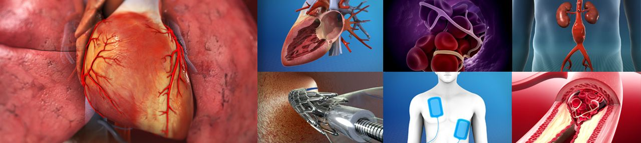 Various images from cardiovascular patient education videos