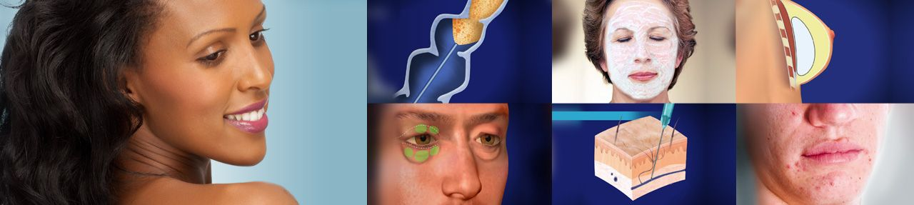 Various images from cosmetic surgery patient education videos