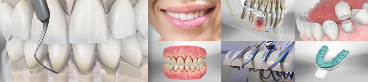 Various images from dental patient education videos