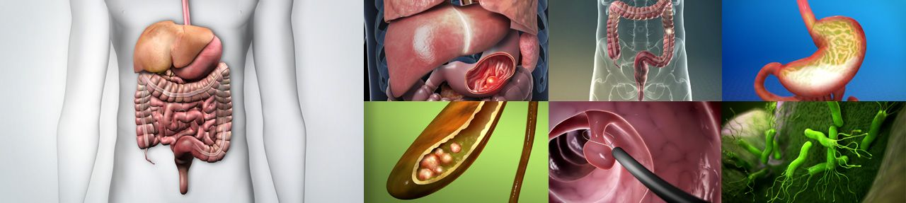 Various images from gastrointestinal patient education videos