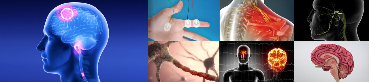 Various images from neurological patient education videos
