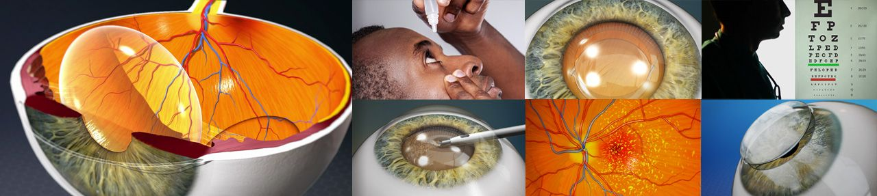 Various images from ophthalmology patient education videos