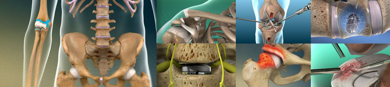 Various images from orthopedic patient education videos