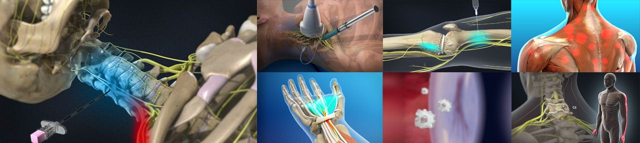 Various images from pain management patient education videos