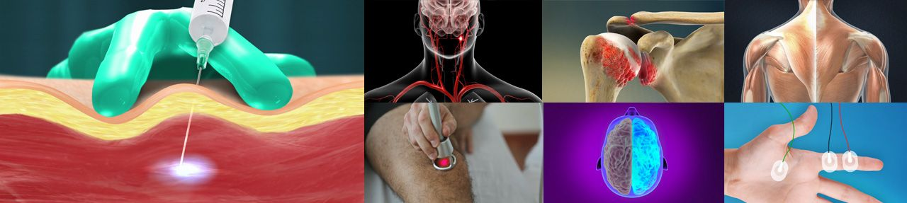 Various images from physiatry patient education videos