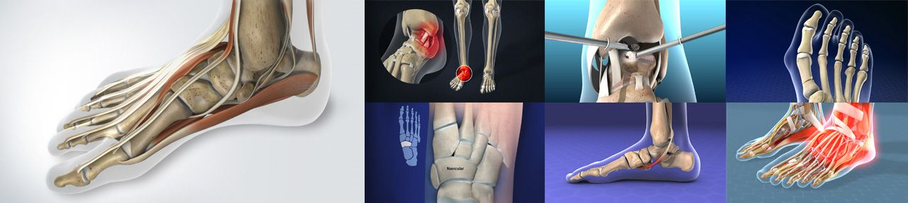Various images from podiatry patient education videos