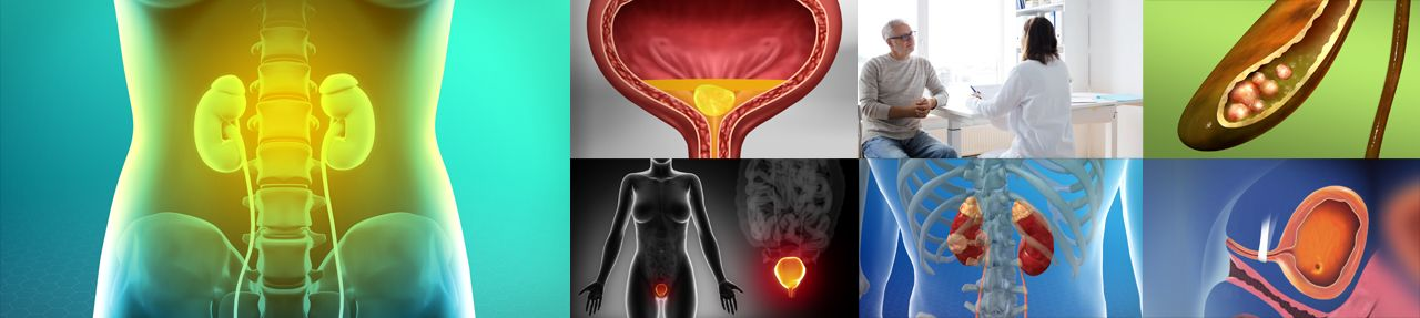 Various images from urology patient education videos